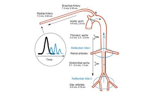 Icke invasiv kontinuerlig blodtrycksmätare för MRI