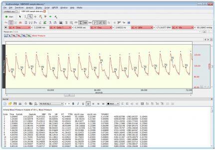 Blodtrycksmätning analys